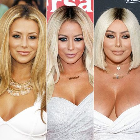 Plastic Surgery picture comparison of Aubrey O'Day from 2009, 2016 and 2019.