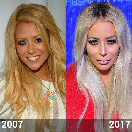 Aubrey O'Day lips filler and plastic surgery.